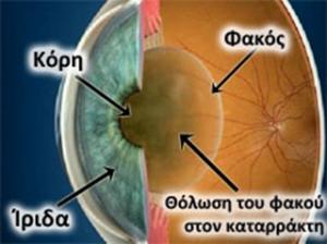 katarraktis-1